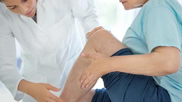 Лечение хронической венозной недостаточности и варикозного расширения вен