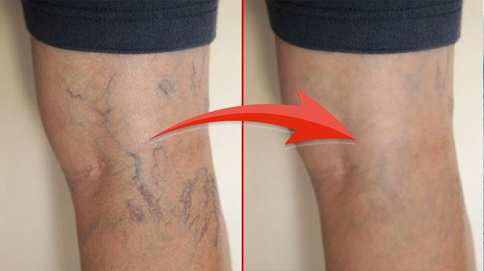 Диосмин отзывы фото до и после