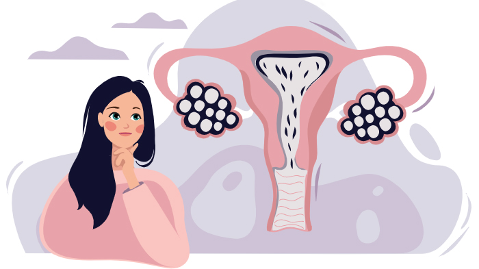 СПКЯ (синдром поликистозных яичников) - симптомы и лечение